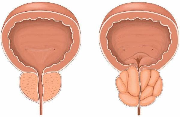 Стоимость лечения предстательной железы в москве