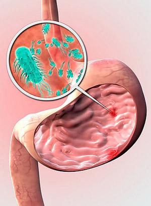 helicobacter_pylori.jpg